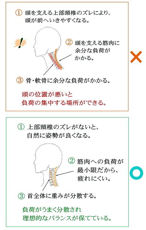 上部頸椎が首の歪みのもと