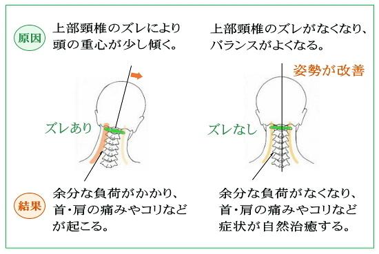 上部頸椎が整うとバランスが改善する