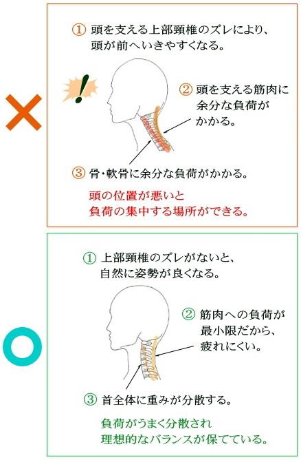 上部頸椎の改善手順