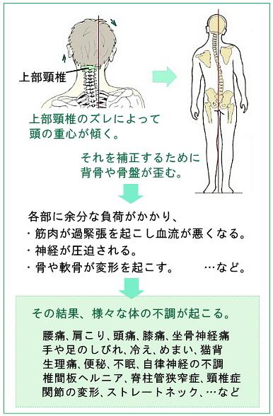 上部頸椎が原因である説明