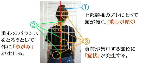 上部頸椎が歪みを起こす
