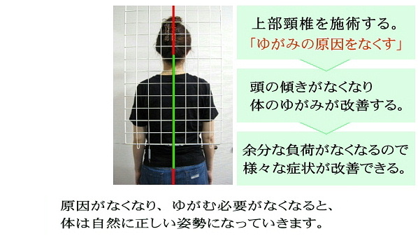 上部頸椎が歪みの原因